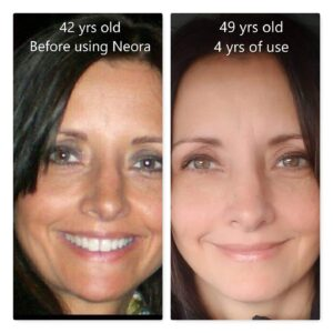 neora age iq before and after lisa michelle